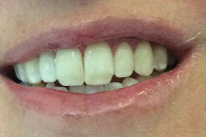 after white spot removal in colleyville, tx