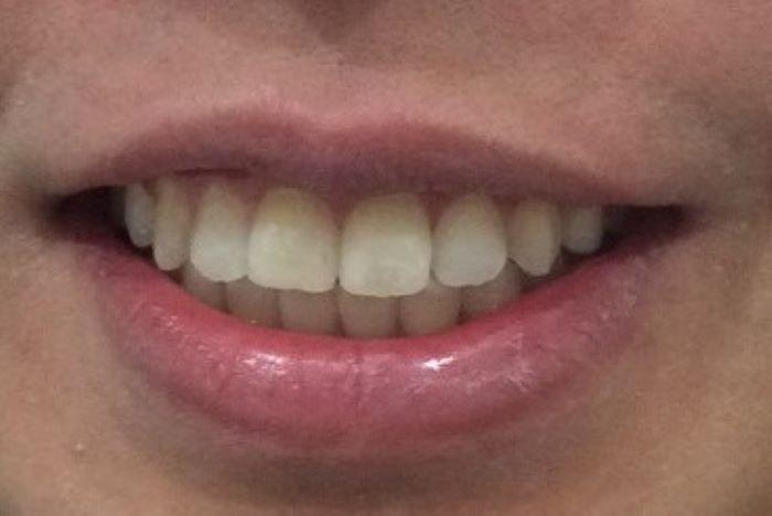 afterimage - orthodontics uneven frontal teeth